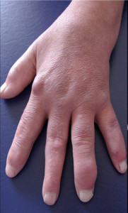 Once an attack of gout has subsided, tophi are often left behind. (Image: FAU)