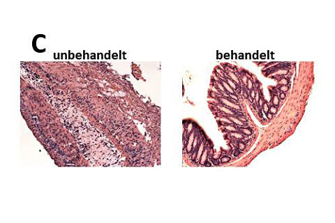 The untreated inflamed bowel wall (left) is full of immune cells (black dots) and has lost almost the entirety of its mucous membrane. The wall of the bowel treated with capsazepine (right) is normal and its mucous membrane is intact.